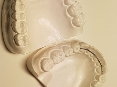 Retainer-stay-3-3